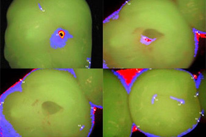 Cura delle carie col laser