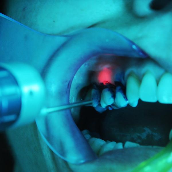 parodontite laser