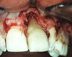 Difetto osseo con lesione apicale del centrale superiore di sinistra