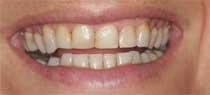 Faccette dentali prima