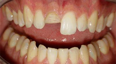 Frattura corona dentale