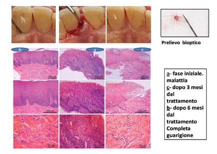 Fase di guarigione parodontologia