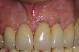 Impianto dentale completato