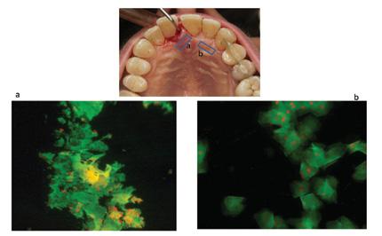 ESEMPIO: parodontite con ascesso dell'incisivo superiore sinistro