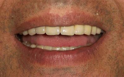 Ricostruzione completa arcata dentale