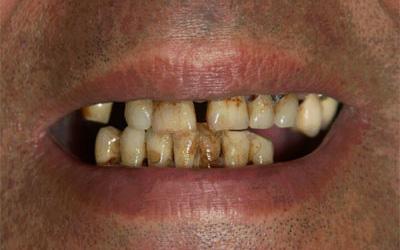 Arcata superiore e inferiore prima del trattamento