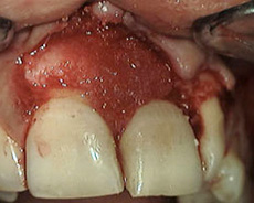 Rigenerazione tessuto con biomateriale