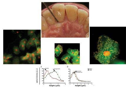 Numerose cellule epiteliali con morfologia intatta, possibilità di trovare cocchi all'interno e all'esterno delle cellule. Fase di guarigione clinica e citologica